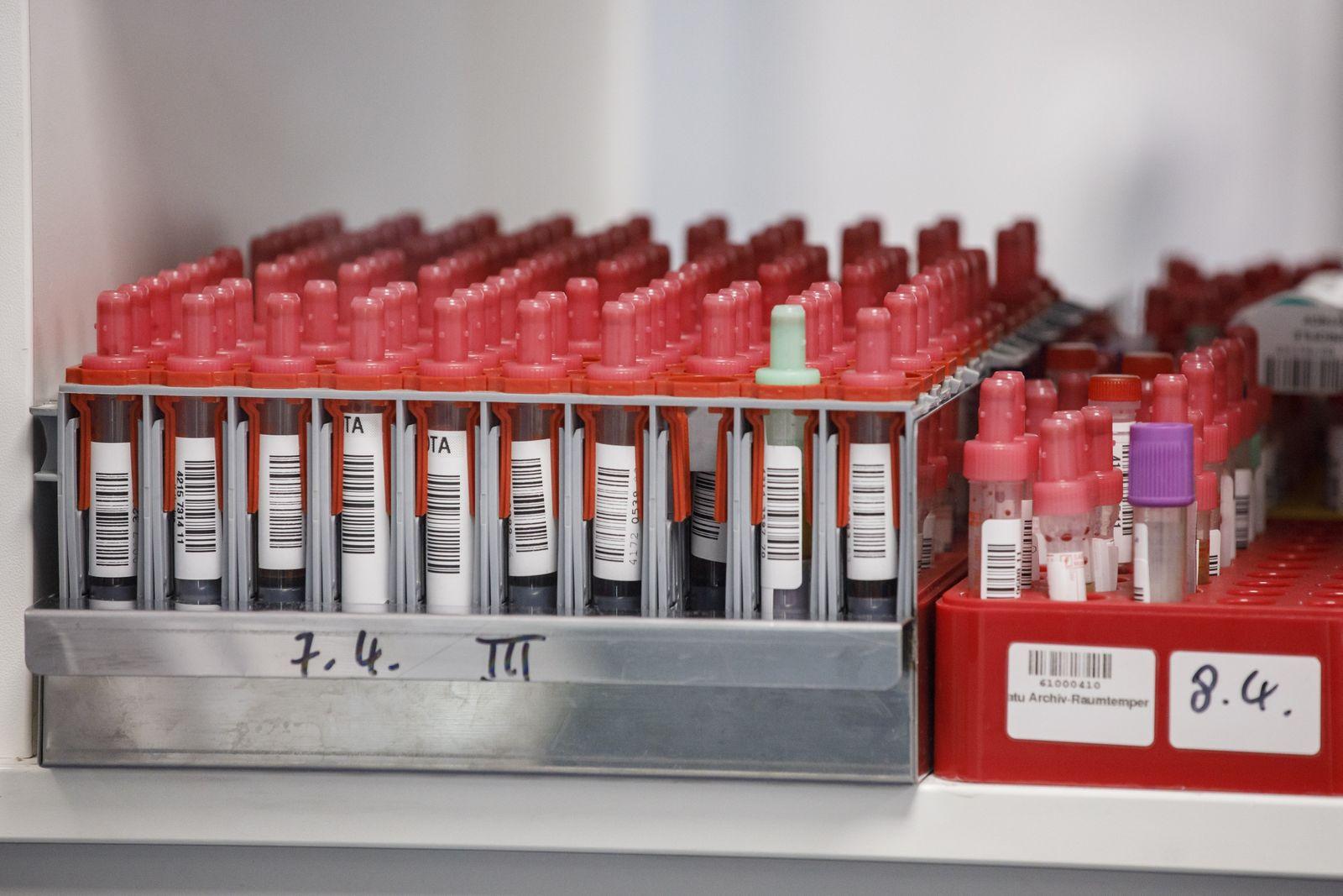 Coronavirus / Test / Laborproben