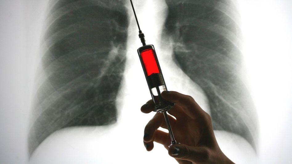 Teure Ansicht: In einigen Bundesländern fahren radiologische Praxen sechsstellige Extraerlöse durch Kontrastmittel ein, die sie den Krankenkassen mit dem Vierfachen des Einkaufspreises in Rechnung stellen