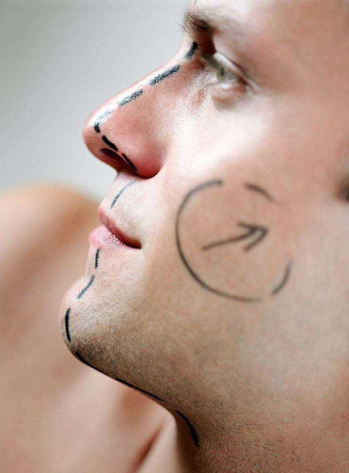 Schön, wenn alles glatt geht: Immer mehr orientiert sich das Schönheitsideal am Machbaren - und auch Männer lassen sich nicht nur die Zornesfalten wegspritzen