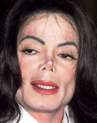 Popstar Jackson: Rotlicht-Regisseur beim Hautarzt kennen gelernt