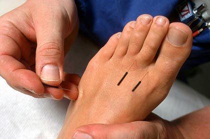 Die richtige Stelle finden: Die feinen Nadeln sollen die Strömungen im Körper beeinflussen