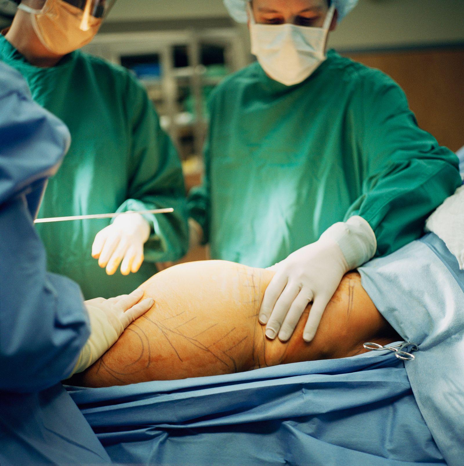 NICHT MEHR VERWENDEN! - Schönheitschirurgie / Plastische Chirurgie / Intim