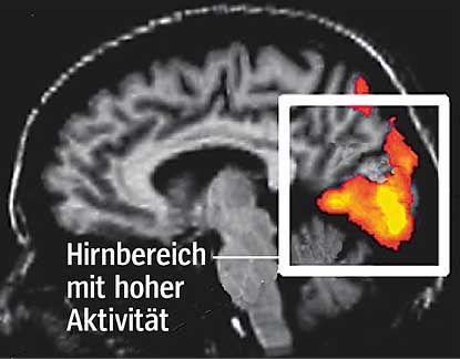 Der Hirnscan macht's möglich: Die Aktivität einzelner Bereiche des Gehirns kann als Reaktion auf äußere Reize im Magnetresonanzverfahren farblich dargestellt werden