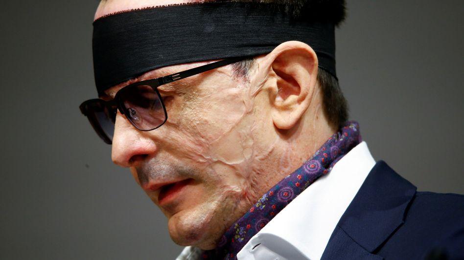 """""""Ob das jemals wieder richtig gut wird, wird sich zeigen"""": Jenseits der Narben - Innogy-Manager Bernhard Günther schließt nach dem Säure-Anschlag bleibende Augenschäden nicht aus."""