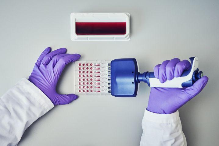Untersuchung im Labor: Die US-Arzneimittelbehörde FDA hat erstmals einen Antigentest zugelassen. Mit diesem neuen Test steht das Ergebnis schon innerhalb on wenigen Minuten fest