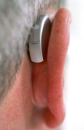 Hörgeräte: Der weltweite Markt wird von wenigen Anbietern beherrscht, die Eintrittsbarrieren sind hoch. Die Hersteller fahren kontinuierlich hohen Margen ein
