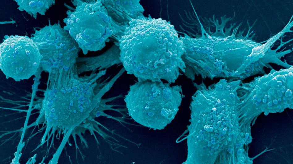Krebszelle: Google will künftig Nanopartikel im Blut patrouillieren lassen